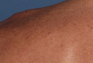 Basal Cell Carcinoma Victoria Skin Cancer Screening Early Diagnosis Skin Cancer Screening Victoria Bc