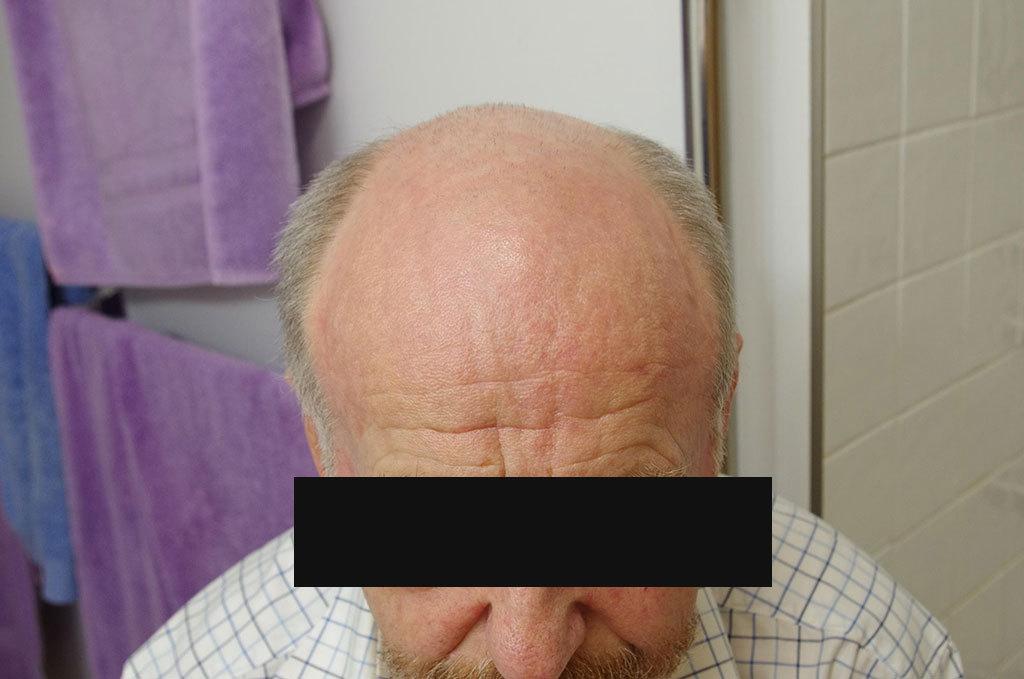 Patient observations whilst using 5-FU (Efudex) • Victoria Skin