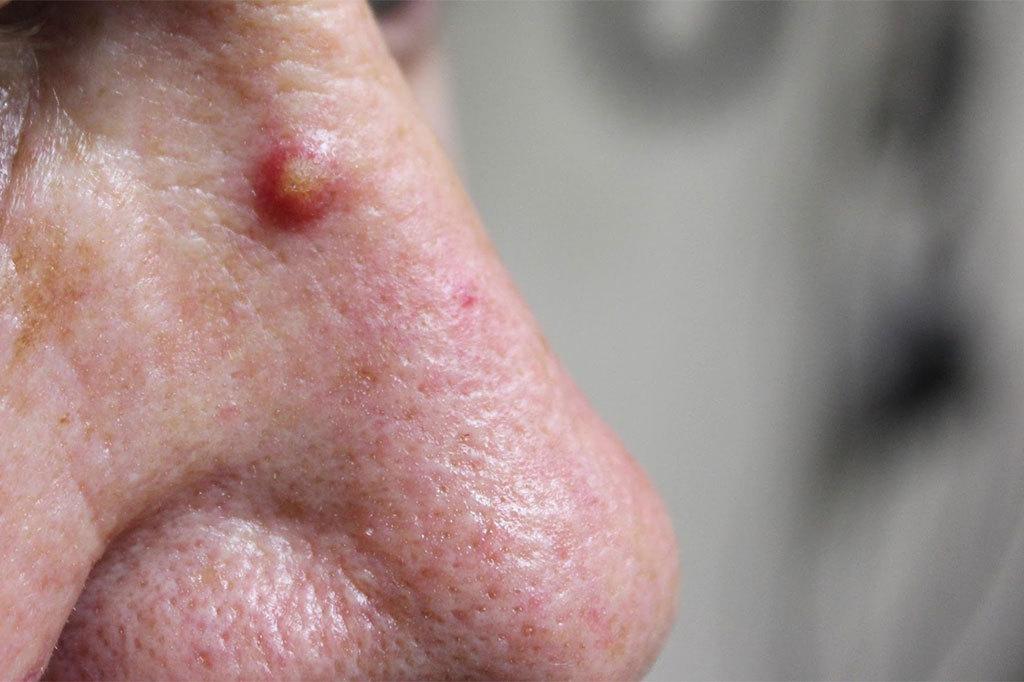 Solar (Actinic) Keratosis • Victoria Skin Cancer Screening