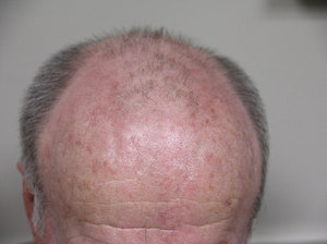 Actinic Keratosis of scalp and forehead